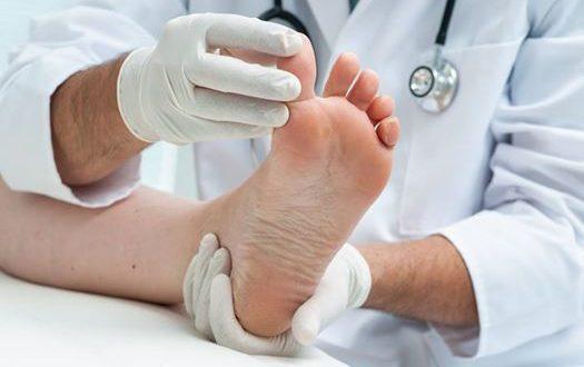 Ārsta bezmaksas konsultācija par diabētiskas pēdas čūlas aprūpi